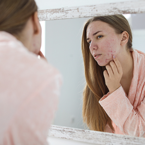 woman looking at acne